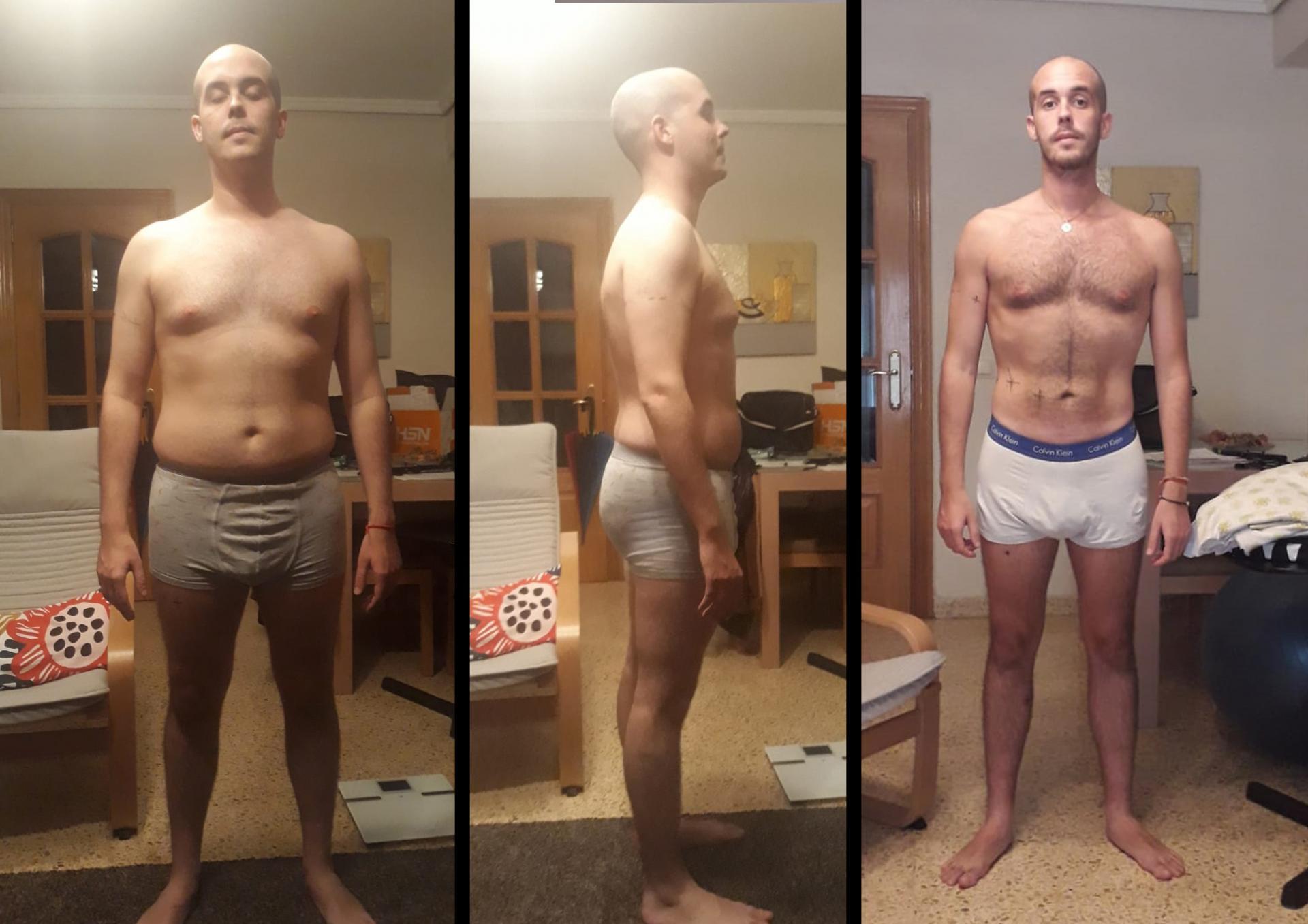 Alejandro Manrique antes y después